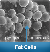 laser-lipo-fat-cells-before.png
